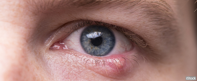 Styes and Chalazia: How to Recognize and Treat Two Common Eyelid Disorders  - Health and Wellness Alerts